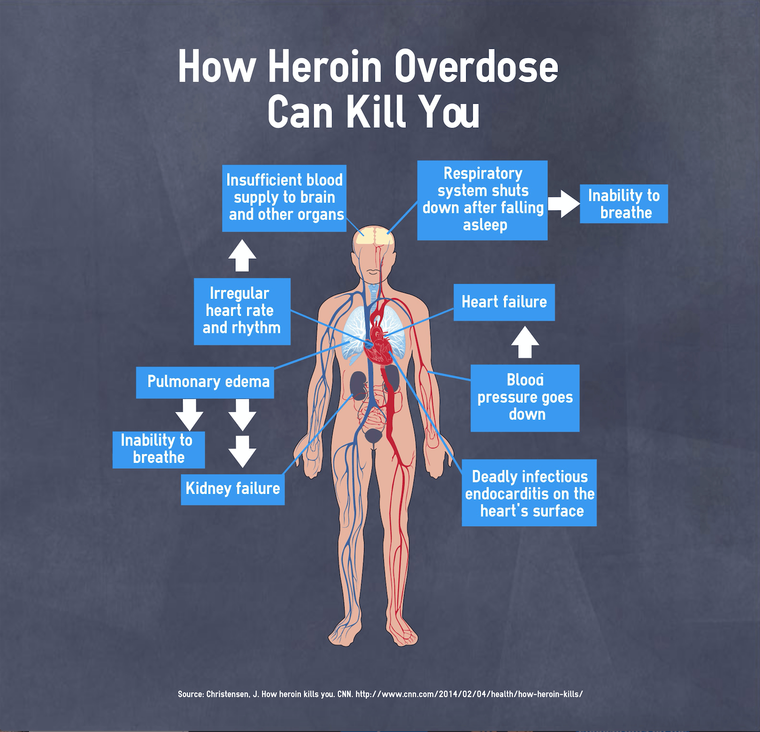 Heroin Effects on the Body: What Does Heroin do to the Body?