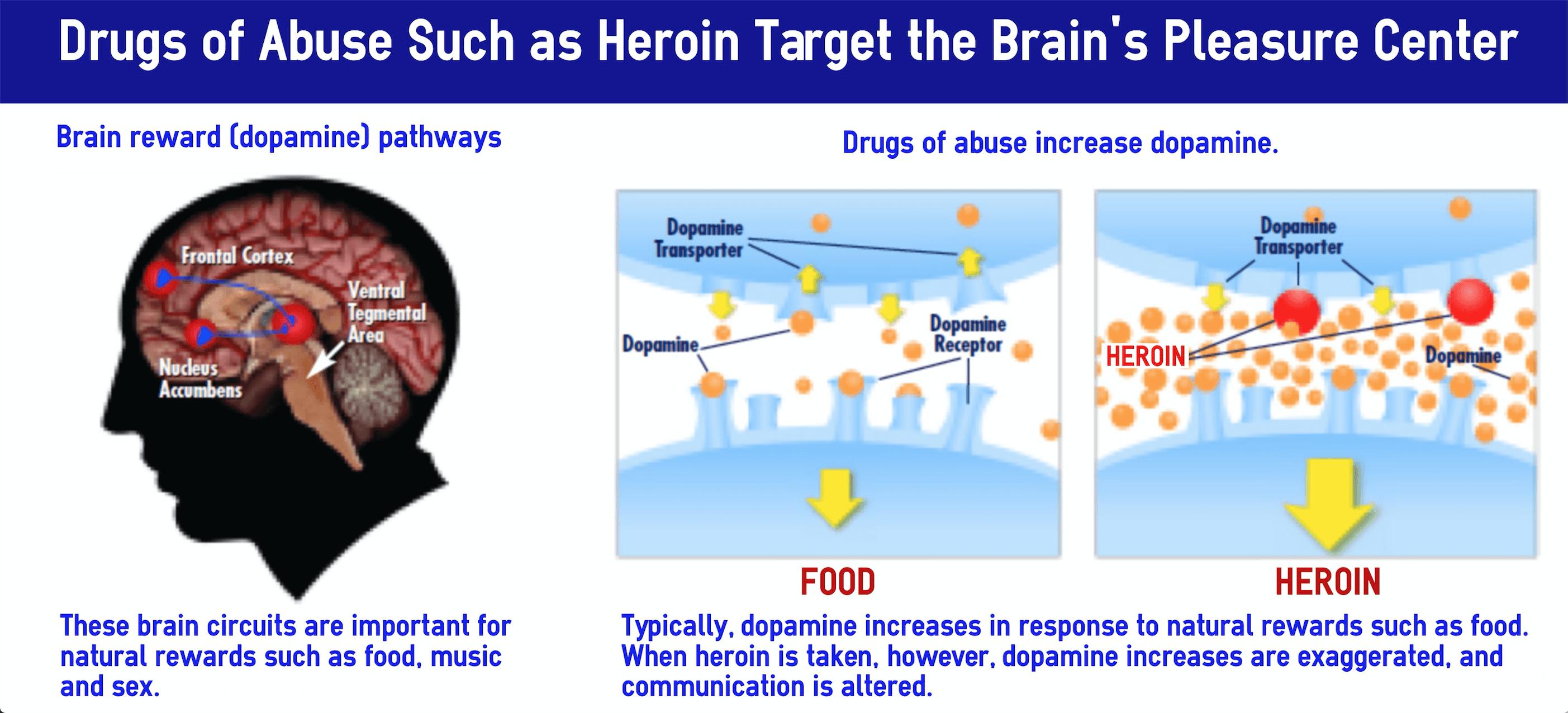 heroin in the brain
